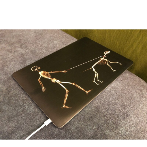 MTT black Skeleton Case for MacBook 3